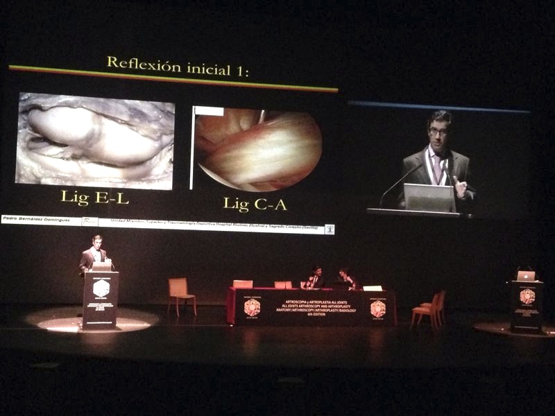 Ponencia del Dr Bernladez International Arthrscopy Course