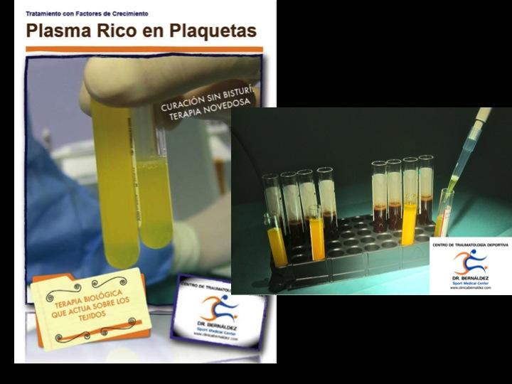 SPORTME PLASMA RICO EN PLAQUETAS www.clinicabernaldez.com