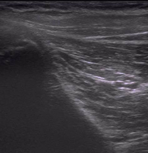 osteopatia-de-pubis-3