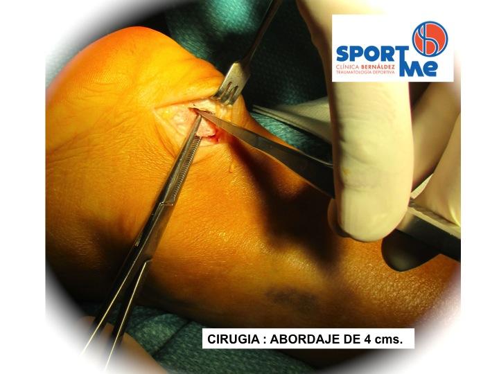 Enfermedad Hadlung resección Q Sportme Sevilla