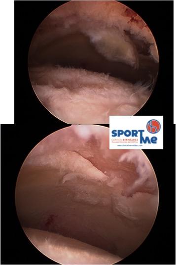 Condropatia acetabulo SPORTME
