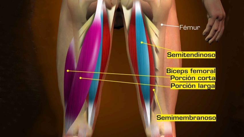 Lesión Isquiotibiales. Rotura muscular