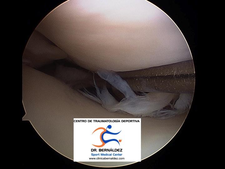 recorrido por una rodilla, conocer la anatomia por dentro