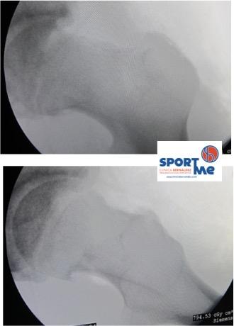 resultado tras osteoplastia del cuello femoral