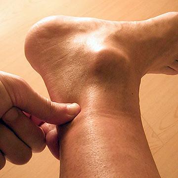 tendinitis-tibial