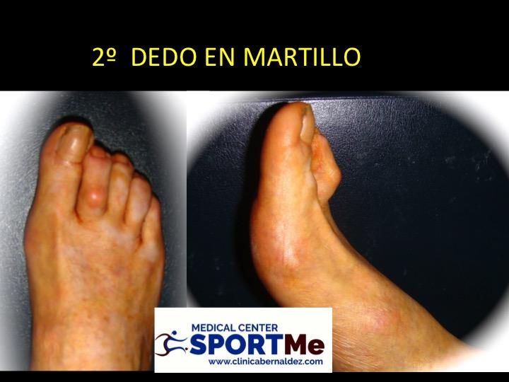 DEDO EN MARTILLO SEVILLA DR BERNALDEZ