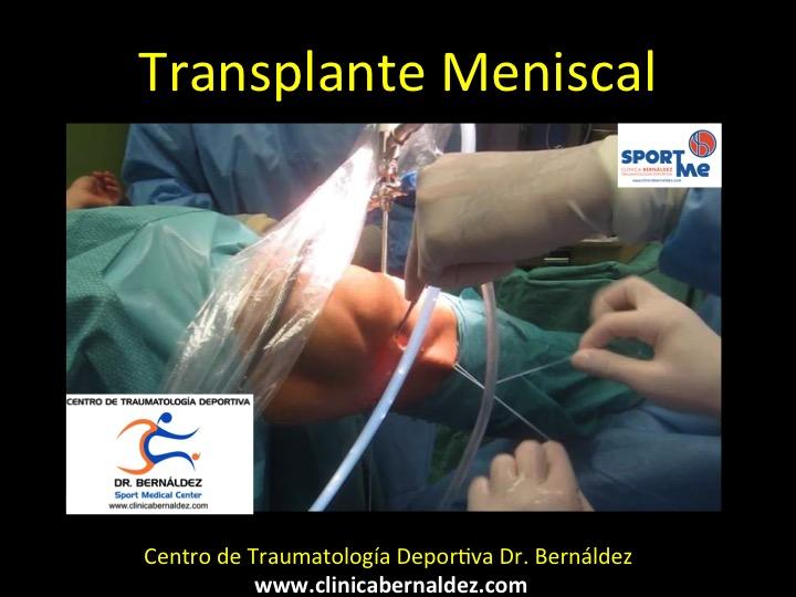 TRANSPLANTE MENISCAL DR BERNALDEZ