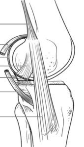 lesion ligamento lateral interno rodilla