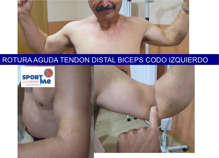 ROTURA BICEPS DISTAL CODO
