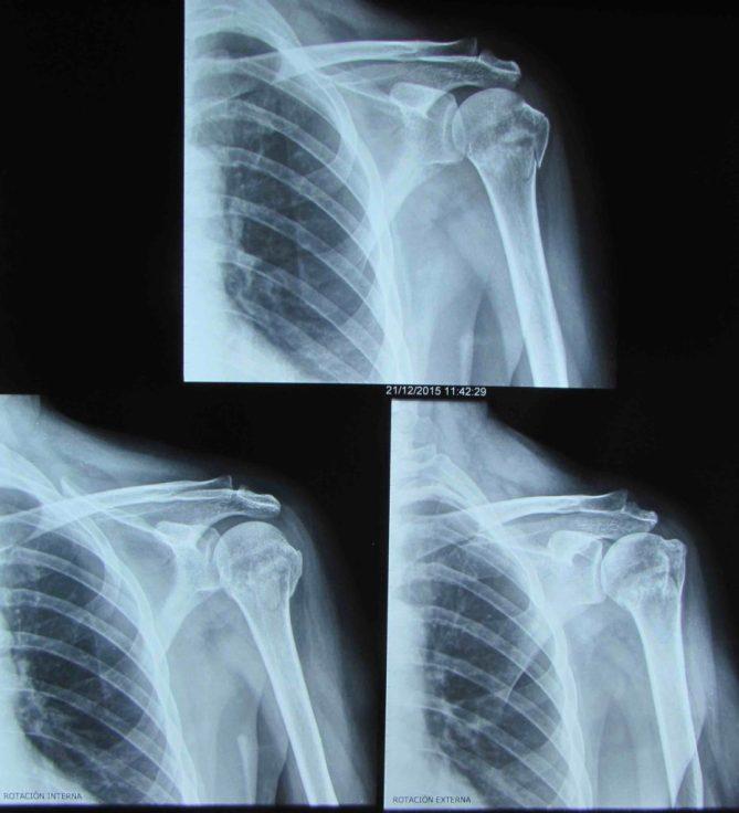 RX fractura humero