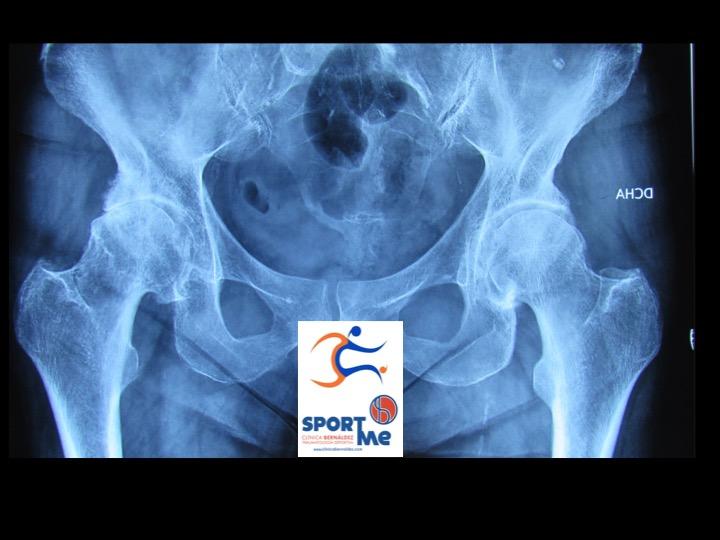 rx artrosis cadera sevilla SportMe.