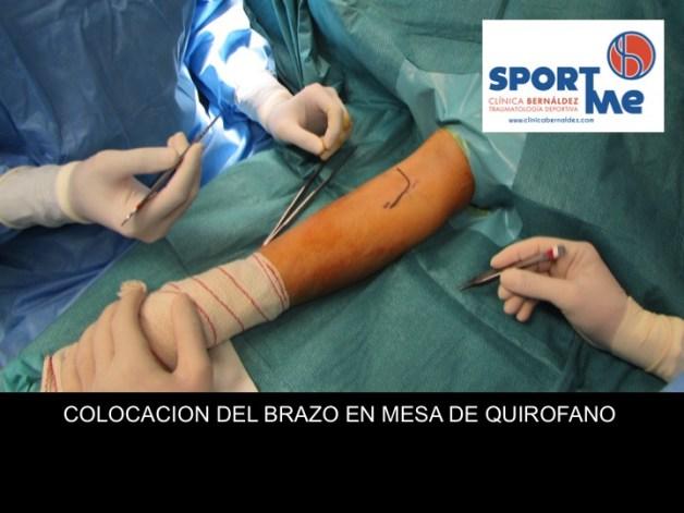 ABORDAJE ROTURA BICEPS CODO DR BERNALDEZ