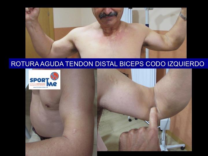 CLINICA ROTURA BICEPS CODO DR BERNALDEZ