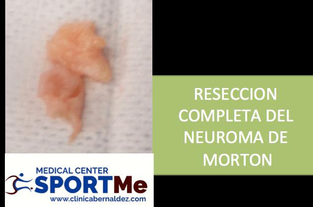 RESECCION COMPLETA NEUROMA DE MORTON SPORTME.