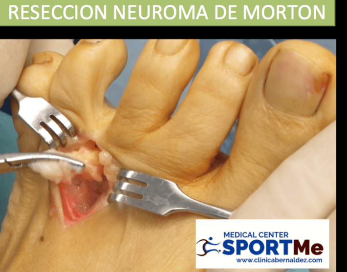RESECCION NEUROMA DE MORTON SPORTME