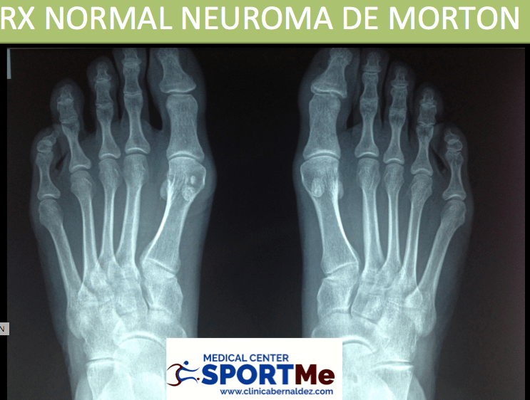 Neuroma de Morton. Diagnostico y Tratamientos