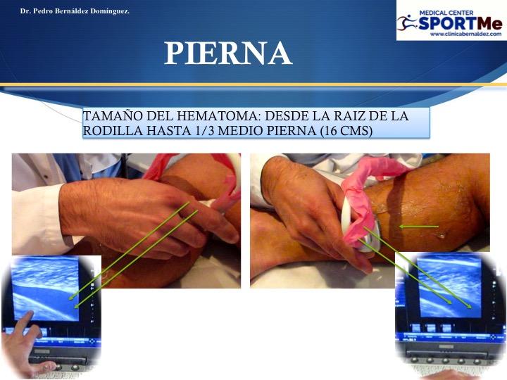 Rotura Fibrilar gemelo o tenis leg. tratamiento deportivo moderno