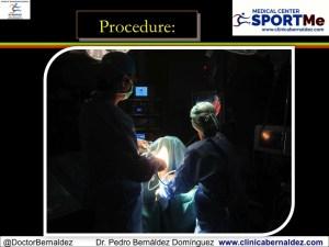 Artrolisis artroscopica SportMe