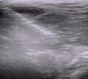 Lesion cadera curado Terapia Biologica ecoguiado