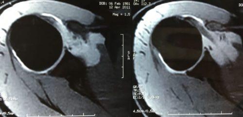 lesion ligamentos hombro ALPSA. Microinestabilidad hombro