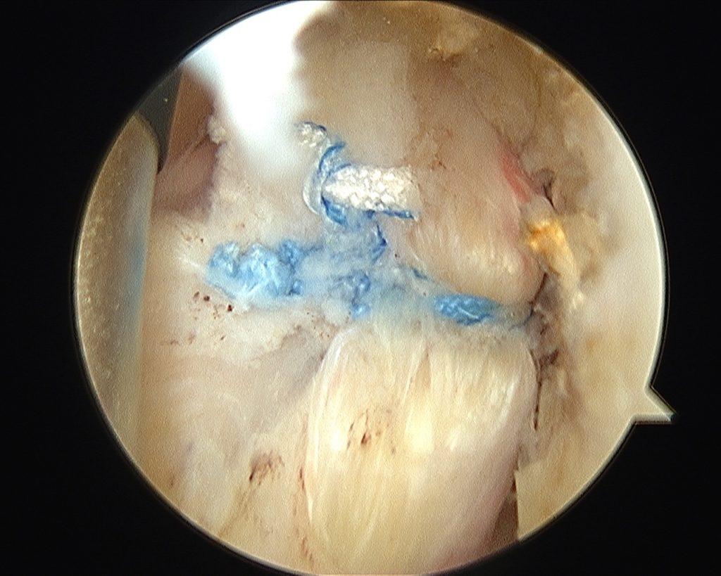 sutura artroscopica del tendon subescapular