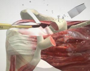 Tecnica de Latarjet para las inestabilidades de hombro tras fracaso del bankart artroscopico