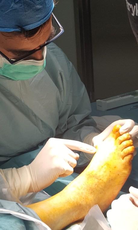 Dr Bernaldez Experto en cirugía del pie