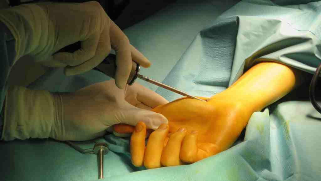 tornillo canulado percutaneo pseudoartrosis de escafoides dr bernáldez