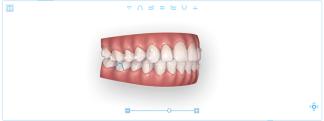 Ortodoncia invisible - Diseño 3D