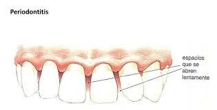 Un Estudio Vincula La Pérdida Dental Con El Deterioro De La Salud En Las Personas Mayores