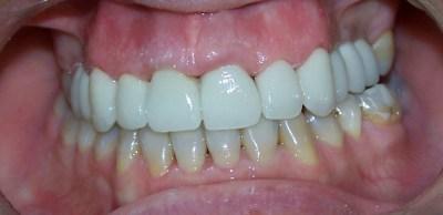 Terminación en cerámica y harmonización gingival en fase de cicatrización