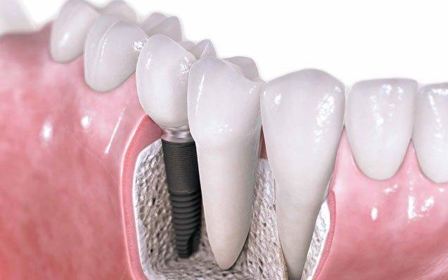 Implantologia dental segura