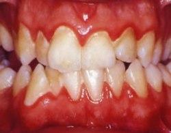 Causas gingivitis. Síntomas gingivitis.