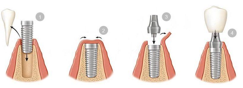 colocacion-implantes-dentales