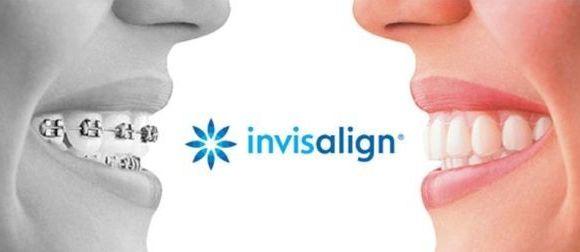 ¿Qué es la ortodoncia Invisalign?