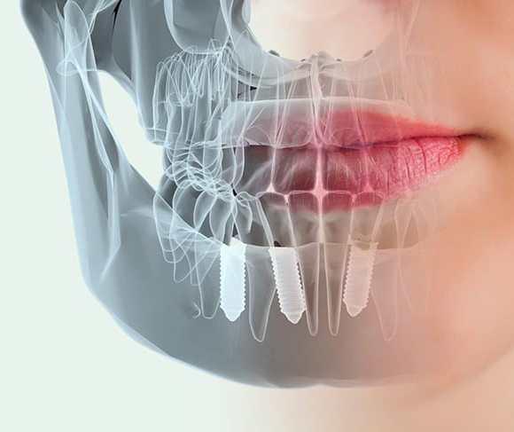 70 Preguntas sobre los Implantes Dentales