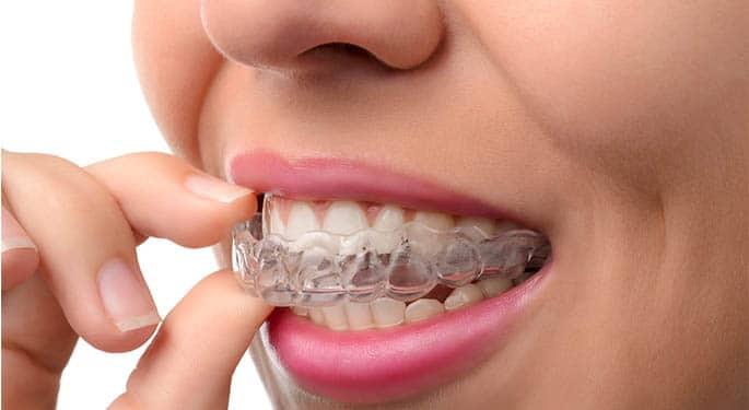 ¿Para que sirven las Férulas Dentales?