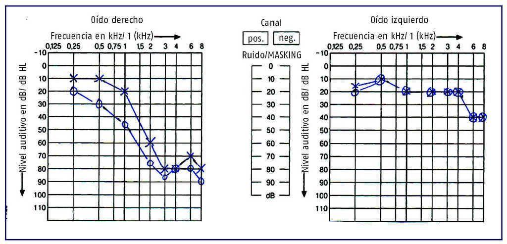clinicadental-morenocabello-audiograma.