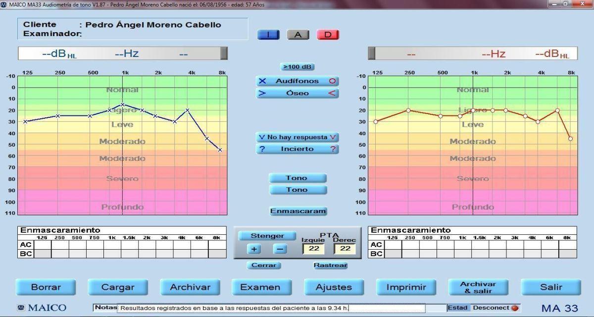 clinicadentalmorenocabello-audiograma-inicial-de-los-dos-oidos