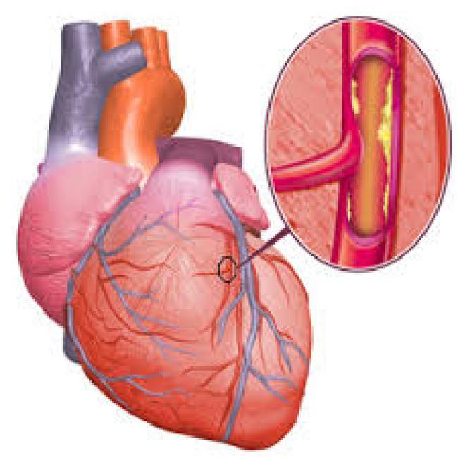 El uso de inhibidores de la proteína PCSK9 en pacientes de alto riesgo cardiovascular no sólo reduce drásticamente los niveles de colesterol, sino también el número de infartos e ictus.
