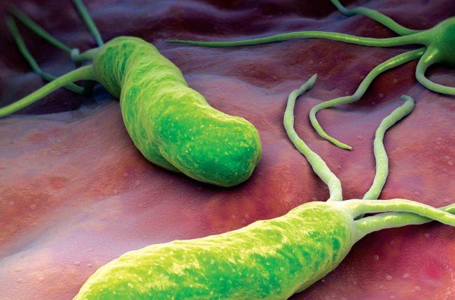 Esta bacteria, causante de la gastritis, la úlcera péptica y el cáncer de estómago, afecta a la mitad de la población mundial.
