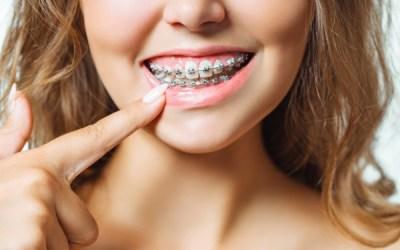 ¿Qué problemas soluciona la ortodoncia?