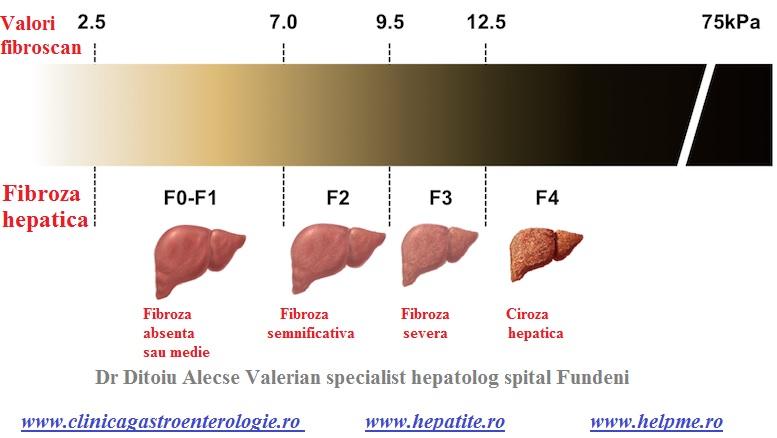 Valorile fibroscan