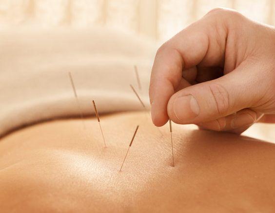 acupuntura médica