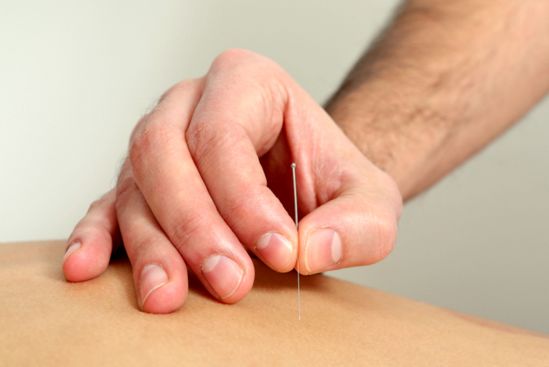 consulta de acupuntura porto