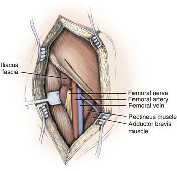piriformis syndrome, obturator internus syndrome, pudendal nerve, Muscles
