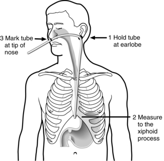 104 Esophagogastric Tamponade Tube Clinical Gate