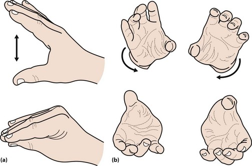 Image result for parkinson's patient bradykinesia hand