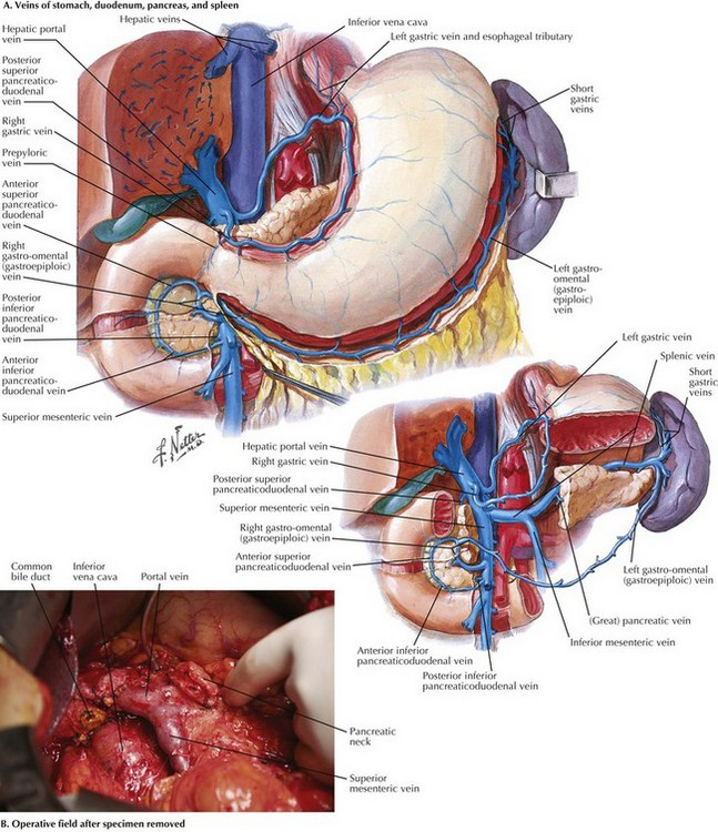 Pancreaticoduodenectomy | Clinical Gate