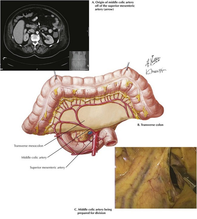 Transverse Colectomy Clinical Gate
